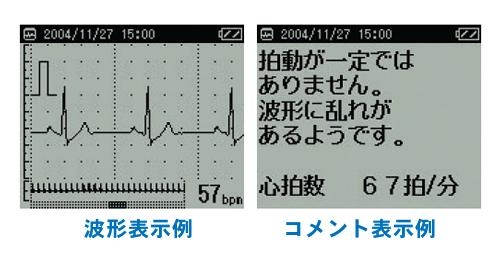 心電図波形を解析して、コメントを表示