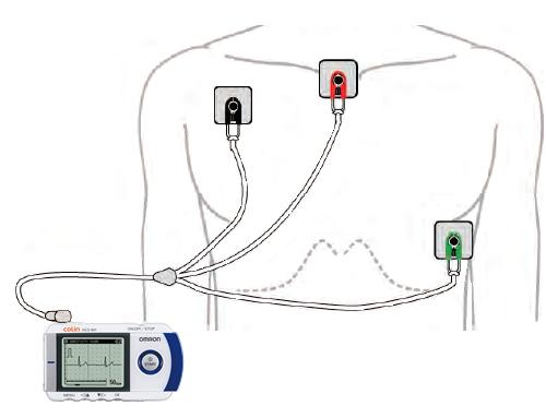 外部電極も装着可能