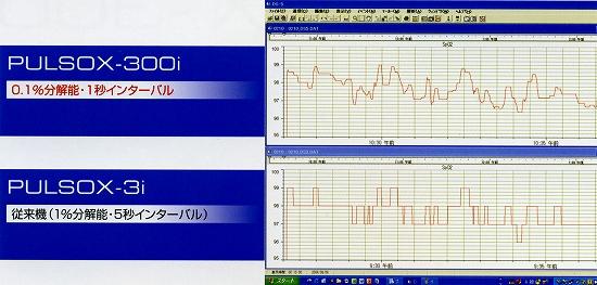 pulsox-300i 高精細メモリ